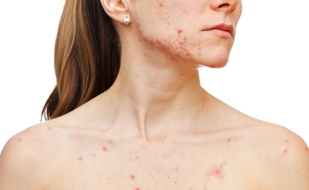 לימפומה של העור