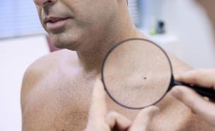 בדיקת עור (צילום: Image Point Fr, Shutterstock)