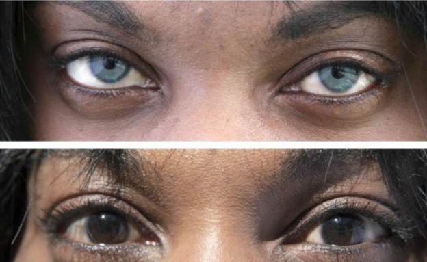 ניתוח צבע העיניים (צילום: BrightOcular)