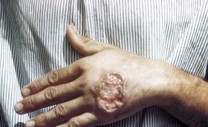 שושנת יריחו | לישמניה (צילום: wikimedia user: CDC/ Dr. D.S. Martin)