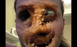 פני בייגל (צילום: טוויטר)