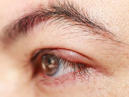 שעורה בעין (צילום: Freedom_Studio, Shutterstock)