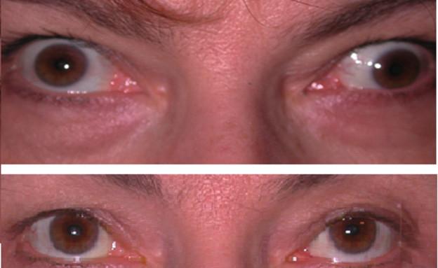 פזילה לפני ואחרי (צילום: צילום ביתי)