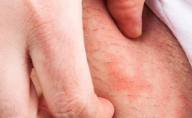 דלקת עור אטופית (צילום: Shutterstock)
