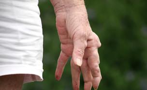 דלקת מפרקים שגרונתית (צילום: Shutterstock)