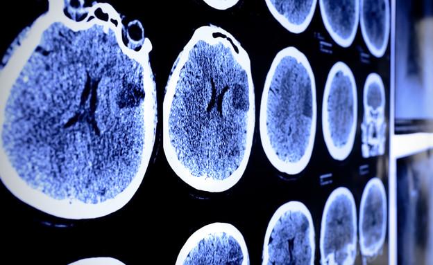 שבץ מוחי אילוסטרציה (צילום: ShutterStock)