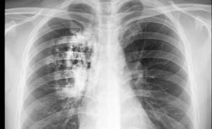 סרטן הריאות (צילום: wonderisland, Shutterstock)