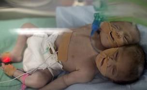 תאומים סיאמיים עזה (צילום: AFP)