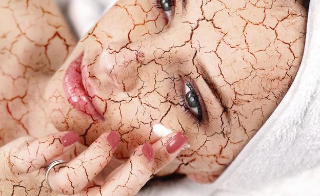 עור יבש (צילום: Shutterstock)