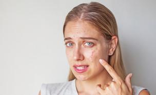 אקנה (צילום: Shutterstock, מעריב לנוער)