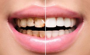 שיניים (צילום: Shutterstock)