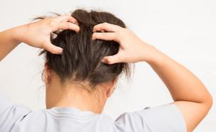 אישה מגרדת בראש (צילום: Shutterstock)