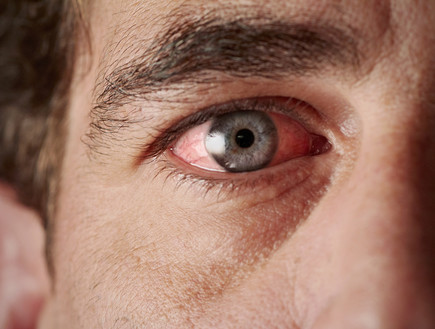 עין אדומה