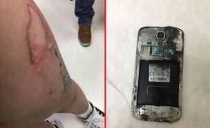 סמארטפון גלקסי S4 שהתפוצץ בכיס של ילד בירושלים (צילום: יחסי ציבור)