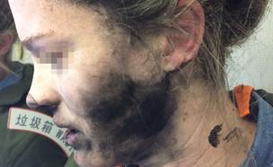אישה שנכוותה מאוזניות ביטס של אפל (צילום: יחסי ציבור)