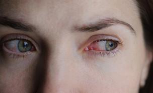 עיניים אדומות (צילום: Domaskina, Shutterstock)