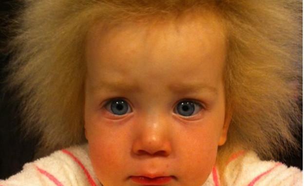 תסמונת השיער הבלתי ניתן לסירוק (צילום: מתוך instagram)