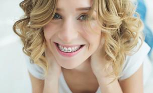גשר בשיניים (צילום: Nina Buday, Shutterstock)