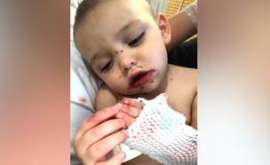 תינוק עם הרפס (צילום: צילום מסך kptv.com)