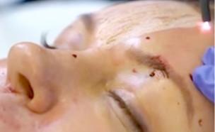 הרמת פנים בג'יי פלזמה (צילום: אינסטגרם)