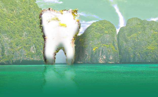 טיפולי שיניים בחוץ לארץ (עיבוד: יחסי ציבור)