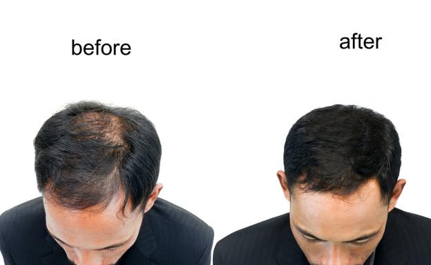 השתלת שיער: לפני ואחרי (צילום: shutterstock:  chairoij)