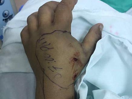 ידו של הילד לאחר שהוכש