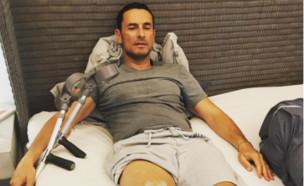 גיא זוארץ פצוע (צילום: instagram)