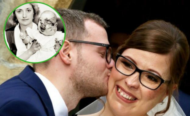 האישה שעברה 18 ניתוחים לתיקון העיוותים בפניה נישאה לאהוב ליבה 3>