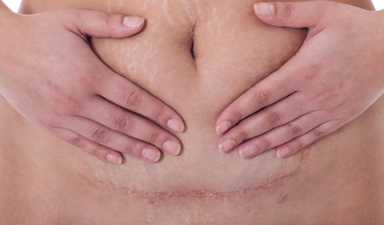 אישה עם צלקת - כריתת רחם (צילום: shutterstock: WEERACHAT)
