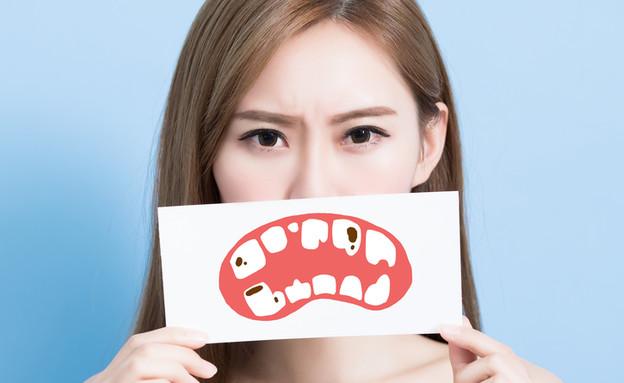 שיניים שבורות (צילום: By Dafna A.meron, shutterstock)