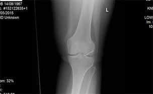 צילום הרנטגן בו זוהתה המתכת