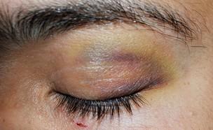 שוטרים בלוד - פגיעה בעין (צילום: צילום פרטי)