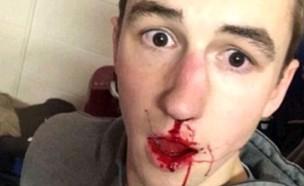 גבר חטף לאף (צילום: snapchat)