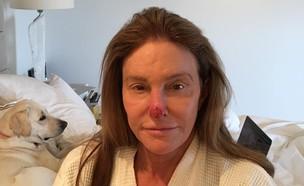 קייטלין ג'נר עוברת ניתוח, מרץ 2018 (צילום: אינסטגרם, צילום מסך)