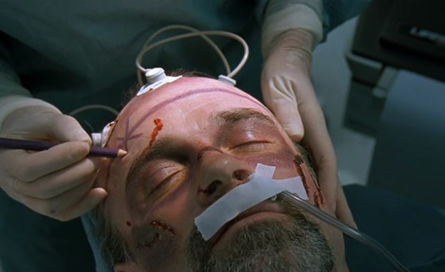 ניתוח מוח (צילום: Youtube/Fandango)