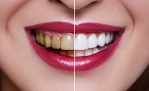 הלבנת שיניים (צילום: By Dafna A.meron, Shutterstock)