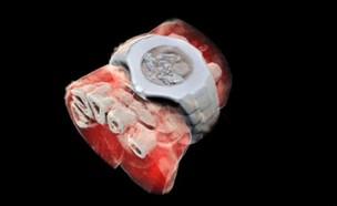 רנטגן בצבע1 (צילום: Mars Bioimaging)