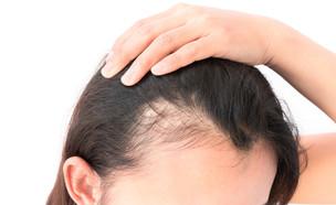 שיער דליל (צילום: By Dafna A.meron, shuttetstock)