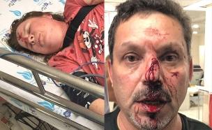 """הזוג שהותקף בביה""""ח וולפסון משחזר (צילום: חדשות)"""