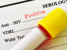 נשא HIV (צילום: Shutterstock)