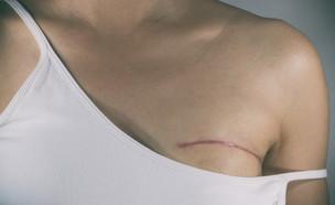 סרטן השד (צילום: shutterstock | Pradit.Ph)