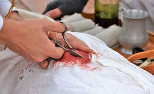 פציעת ירי (צילום: shutterstock | By Jim Lambert)