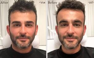 השינוי החיצוני של אליאב אוזן (צילום: מתוך עמוד הפיסבוק של מושיק טקו, פייסבוק)