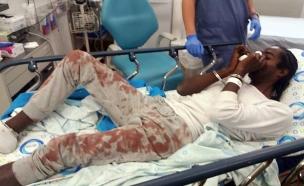 הצעיר לאחר שנפצע בתחנת המשטרה (צילום: חדשות)