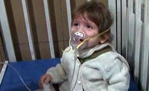 אחד הנפגעים בהתקפה (צילום: מתוך הטלוויזיה הסורית, חדשות)