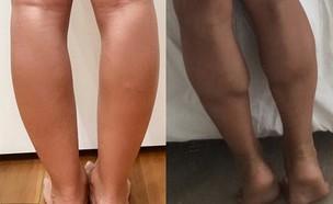 רגליים רזות