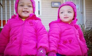 תאומות בין גזעיות (צילום:  Photo by Flash90)