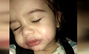 """בן שנתיים נפגע מחומצה שהושארה ללא השגחה בגן (צילום: מתוך """"חדשות הבוקר"""" , קשת 12)"""