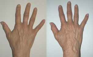 ידיים לפני ואחרי (צילום: סלע מדיקל)